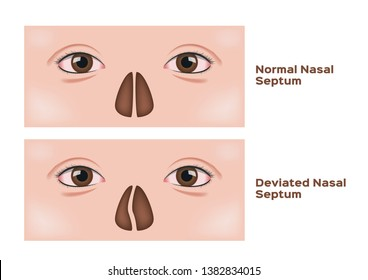 deviated nasal septum vector / human nose