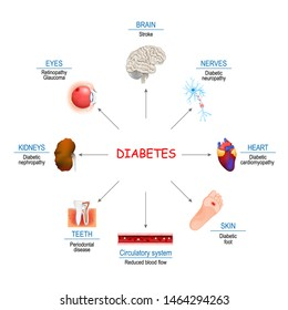 Diabetes Affects. Complications of diabetes mellitus: nephropathy, Diabetic foot, neuropathy, retinopathy, stroke; Reduced blood flow and cardiomyopathy. Vector diagram for educational, medical use