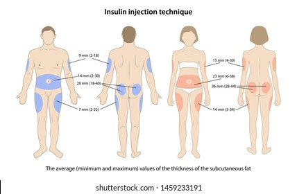Diabetes. Average, minimum and maximum values of the thickness of the subcutaneous fat on the insulin injection sites are shown on male and female bodies. Vector illustration in flat style.