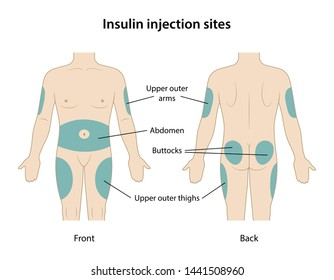 Diabetes. Insulin injection sites shown on the body: upper outer arms, abdomen, buttocks, upper outer thighs. Anatomical vector illustration in flat style isolated over white background.