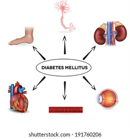 Diabetes mellitus affected areas. Diabetes affects nerves, kidneys, eyes, vessels, heart and skin.
