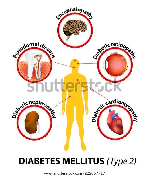 enfermedad renal en diabetes tipo 2