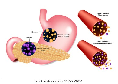 Diabetes Type 1( Less Insulin) and Type 2 (Glucose Levels Increase). Stomach converts food to Glucose. Pancreas produces Insulin.