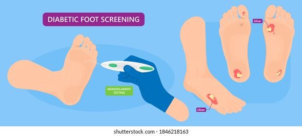 Diabetic Foot Ulcers VAC pain skin high feet sore heal exam test risk NPWT death blood sugar wound level treat nylon tissue eschar detect injury nerves stress semmes artery patient DFU