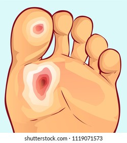 Diabetic foot, vector illustration