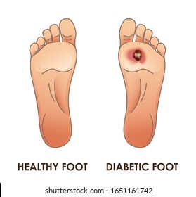Diabetic and healthy foot. Vector illustration for your design