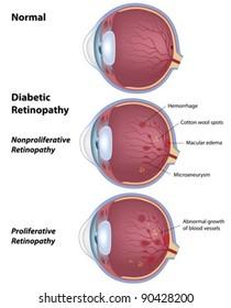 Diabetic retinopathy - disease of the eye as a result of diabetes