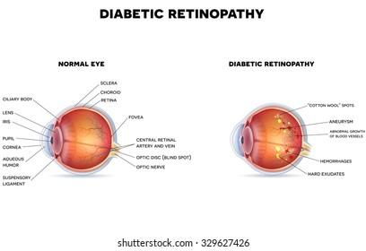 Diabetic retinopathy and healthy eye anatomy.