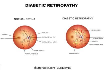 Diabetic retinopathy and normal eye retina.