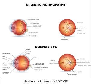 Diabetic retinopathy on a white background, detailed anatomy.