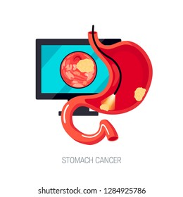Diagnostic of gastric cancer using endoscopy. Sick human stomach with tumors, cut view. Vector illustration in flat style.