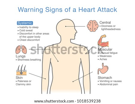 Vetor stock de diagram about warning signs heart attack livre de vetor stock de diagram about warning signs heart attack livre de direitos 1018539238 shutterstock ccuart Image collections