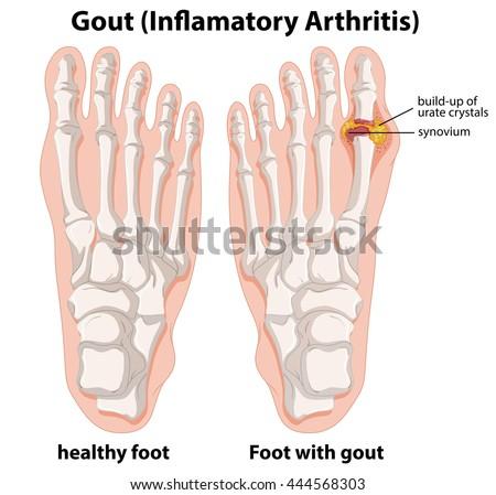 diagram explanation gout human foot illustration stock vector Prosthetic Foot Diagram diagram explanation of gout in human foot illustration