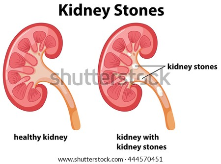 Diagram Kidney Stones Illustration Stock Vector (Royalty Free ...