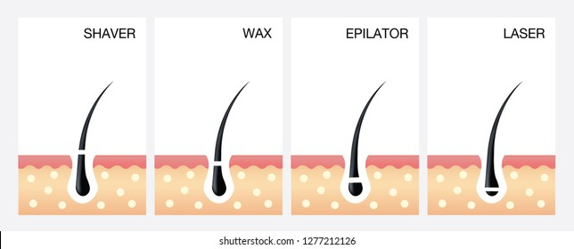 Diagram of laser hair removal.laser hair removal vector.  vector illustration of different methods of hair removal. Types of epilation.