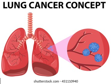 Diseased lungs stock vectors images vector art shutterstock diagram of lung cancer concept illustration ccuart Choice Image