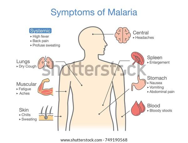 diagram patient malaria symptoms appear illustration stock severe malaria malaria symptom diagram #5