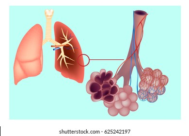 Diagram the pulmonary alveolus (air sacs) in the lung. The respiratory system  lungs with detail of bronchioles and alveoli with capillary network. Alveoli structure Anatomy