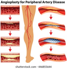 Diagram showing angioplasty for peripheral artery disease illustration