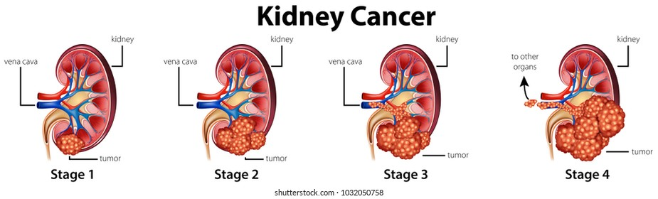 Kidney drawing images stock photos vectors shutterstock diagram showing different stages of kidney cancer illustration ccuart Gallery