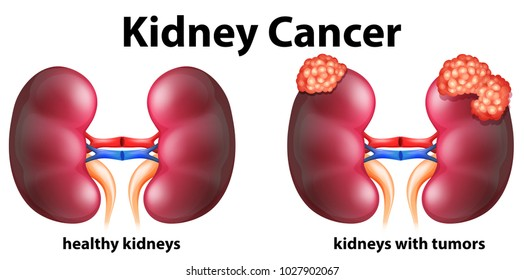 Diagram showing kidney cancer in human illustration