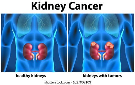 Diagram showing kidney cancer in human illustration