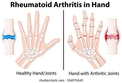 Diagram showing rheumatoid arthritis in hand illustration
