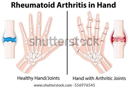 Diagram Showing Rheumatoid Arthritis Hand Illustration Stock Vector