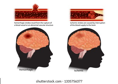 Diagram of the two types of stroke. Strokes classified: ischemic and hemorrhagic