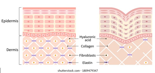 diagrams of young skin and winkle. young skin is firm tight, its collagen framework is healthy. old skin sags as it loses its support structure.