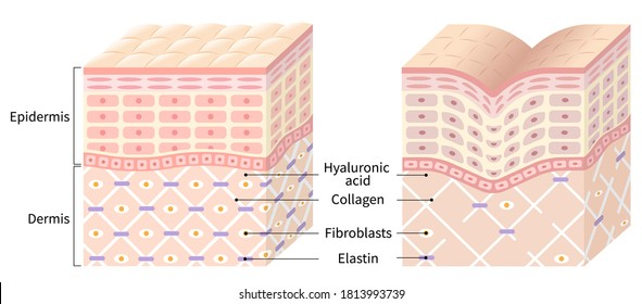 diagrams of young skin and winkle skin. young skin is firm tight, its collagen framework is healthy. old skin sags as it loses its support structure.
