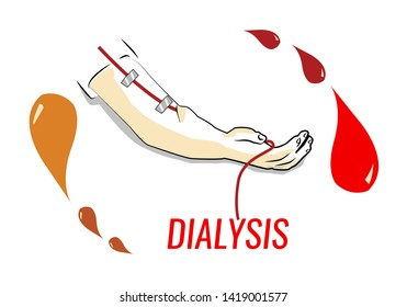 Dialysis concept. Hand with tube and droplets of dirty and filtered bodily fluids. Editable Clip Art.