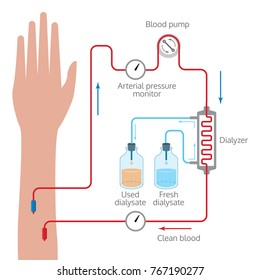 Dialysis process illustration