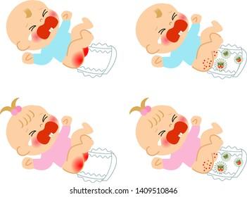 おむつかぶれは泣く赤ちゃんである
