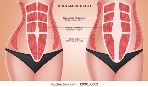 diastasic recti . abdominal . before after pregnancy vector / anatomy