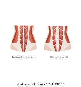 Diastasis recti. Abdominal muscle diastasis after pregnancy. Abdominal problems. Anatomy vector illustration.