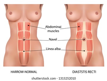 Diastasis recti also known as abdominal separation.