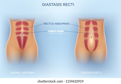 Diastasis Recti also known as Diastasis Rectus Abdominus or abdominal separation, it is common among pregnant women and post birth. There is a gap between the rectus abdominis muscles.