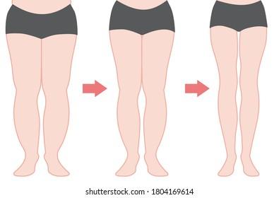 Diet developmental illustration (Leg getting thin)  The color version