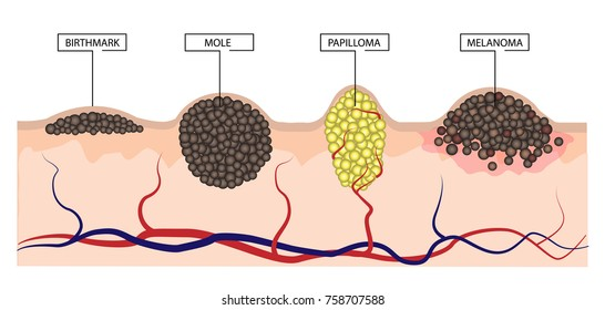The difference between a birthmark, mole, papilloma and melanoma. Infographics. Vecor