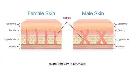 Difference of female skin layer composition and male. Illustration about medical diagram.