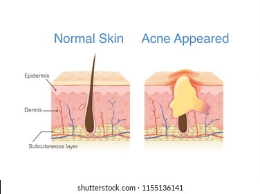 Difference of Normal skin layer and skin layer with Acne. Illustration about dermatology diagram.