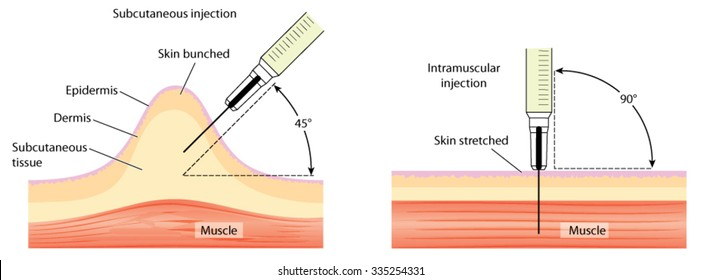 Different methods for injecting the skin and the muscle, showing skin bunching and skin stretching.