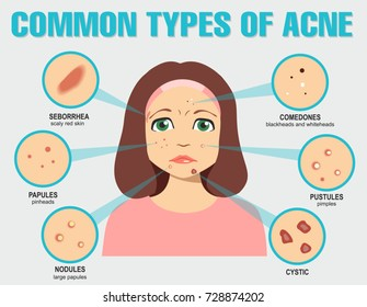 Different type of acne. Vector Illustration with skin problems.