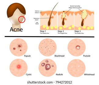 Different types of acne illustration/ Acne stages. Infographic
