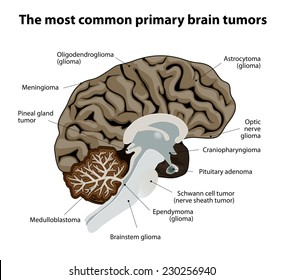 different types of brain tumors. They categorized by the type of cell where the tumor begins. The most common primary brain cancer. Medical Illustration. human Anatomy