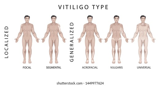 Different Types of Vitiligo. Vector illustration