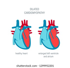 Dilated cardiomyopathy disease concept. Vector illustration for articles, education textbooks etc. in flat style