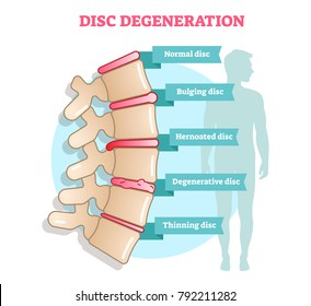 Disc degeneration flat illustration vector diagram with condition exampes - bulging, hernoated, degenerative and thinning disc. Educational medical information.