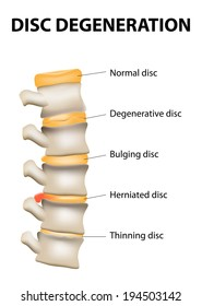 Disc degeneration it's the normal wear and tear process of aging spine. intervertebral discs lose their flexibility, elasticity, and shock-absorbing characteristics.